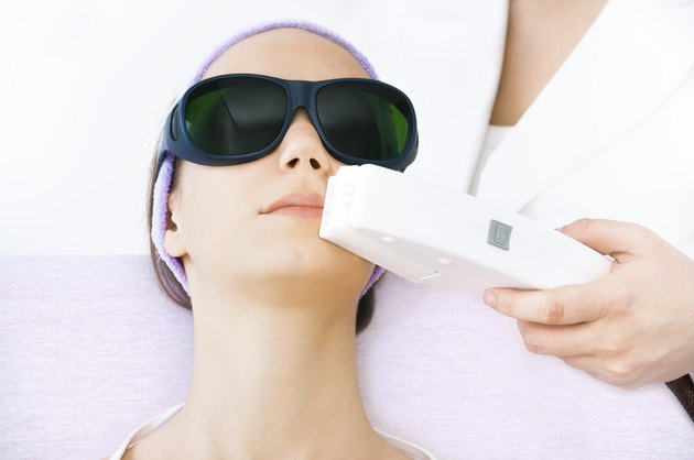 Young woman receiving laser epilation treatment on upper lip