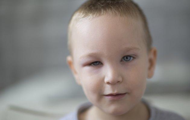 Little boy with swollen eye