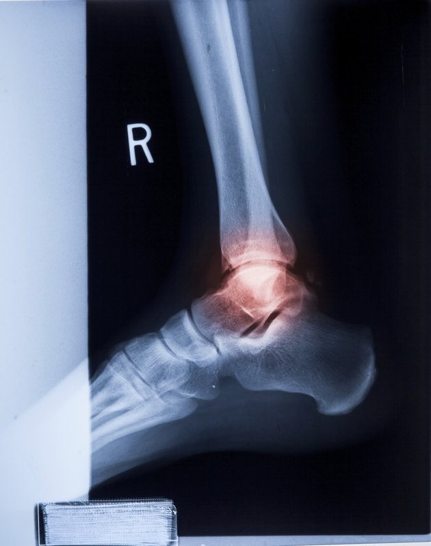 Ankle feet & knee joint pain X-ray MRI photo film