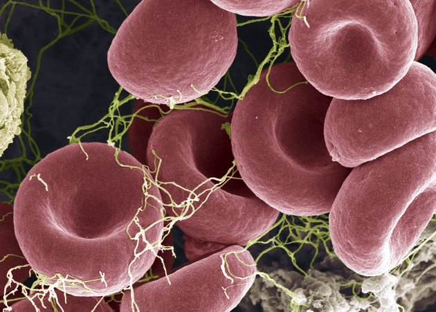 Blood clot, colored scanning electron micrograph (SEM)