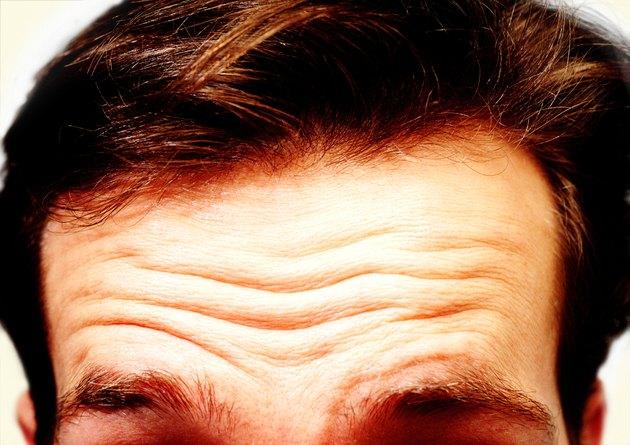 Man's Hairline