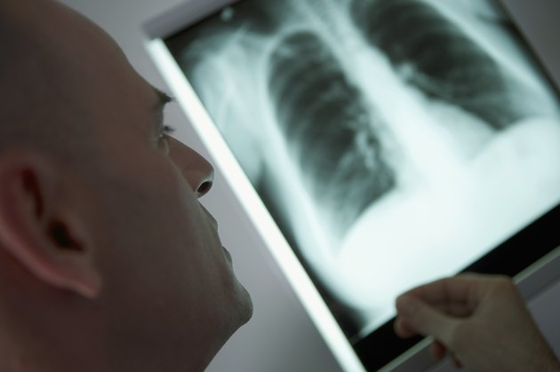 Male healthcare worker looking at x-ray, with person's hand on side of image