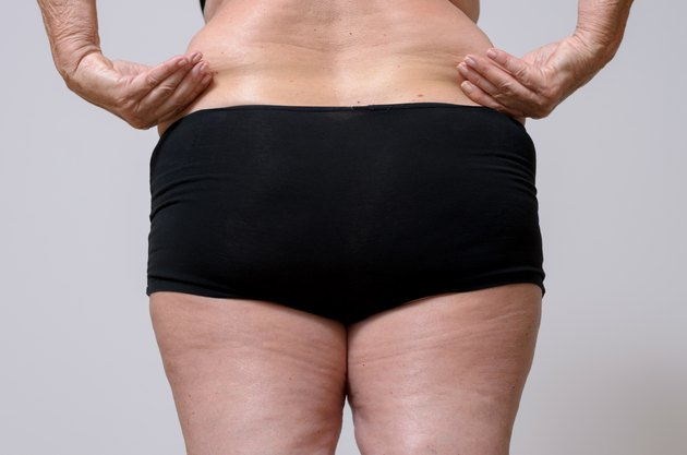 Rear View of a Woman in Underwear Holds Fat Belly