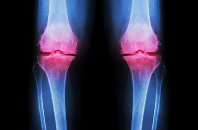 Osteoarthritis Knee ( OA Knee )