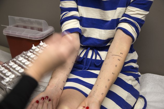 Allergy testing on a woman's arm