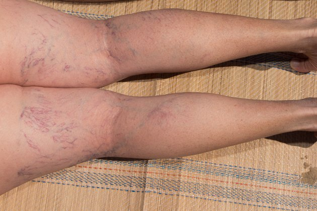 Painful varicose and spider veins
