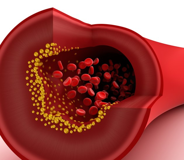 Closeup view of cholesterol plaque in blood vessel