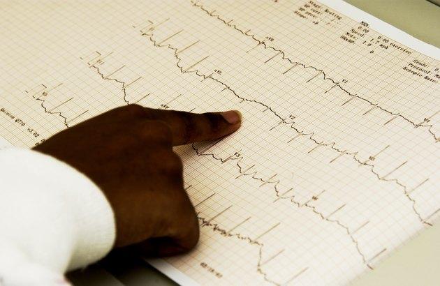 Technician monitors EKG machine