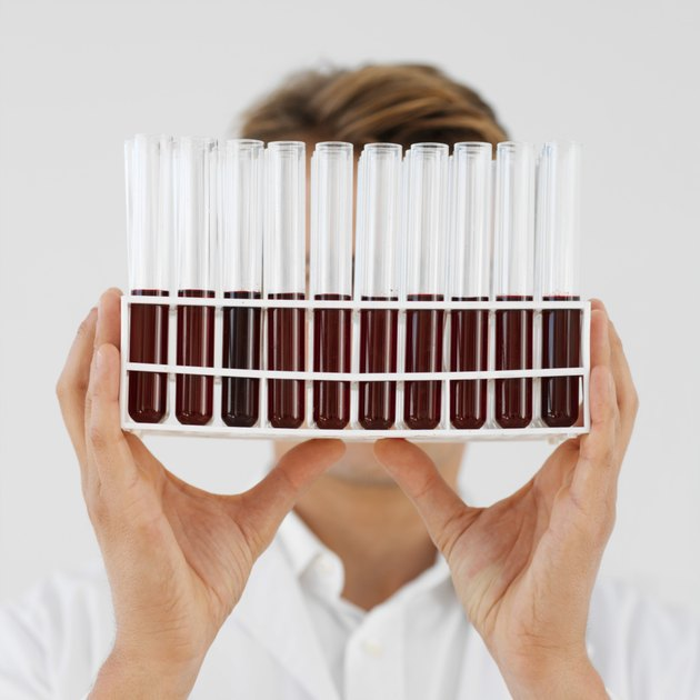 Close-up of a doctor holding test tube rack of blood samples