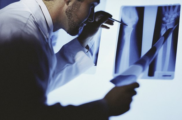 Male doctor examining an X-ray