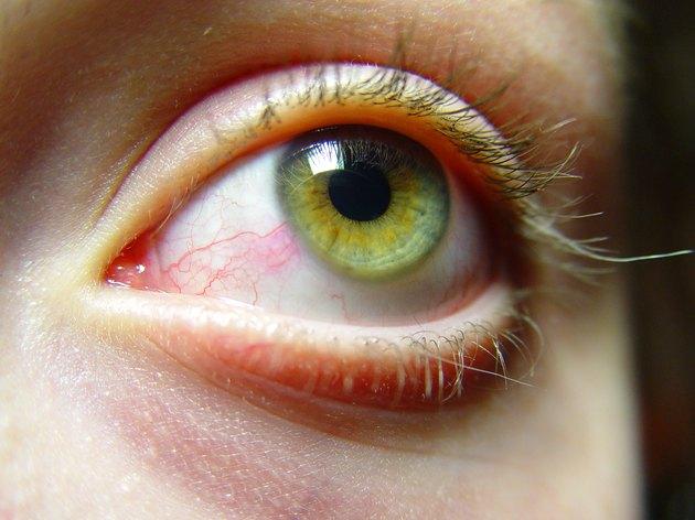 Irritated female eyes close-up