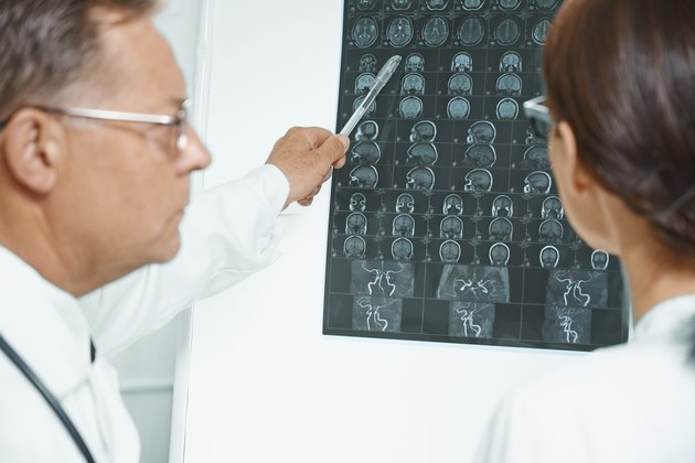 Physicians examine MRI image of human head