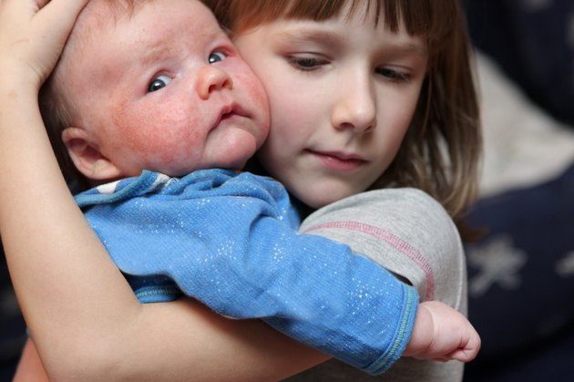 Girl embraces her brother
