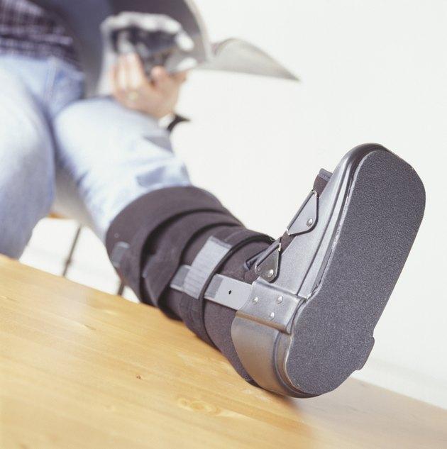 Foot in cast