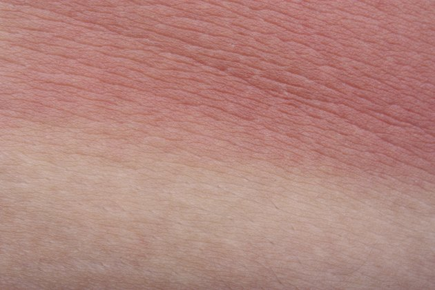 Example sunburn skin