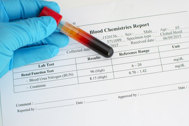 Abnormal renal function test