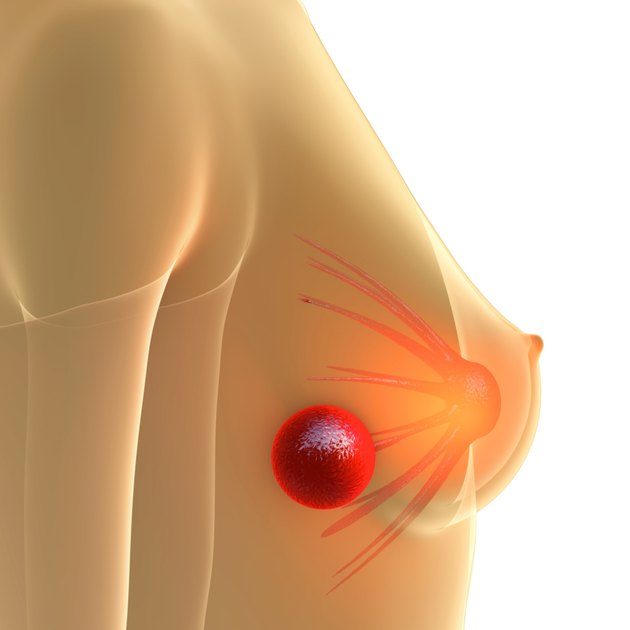Breast Lump - 3d rendered illstration