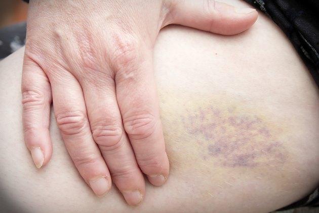 Holding Bruise on Leg