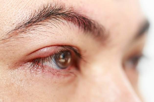 "Right upper eye lid abscess ""stye or hordeolum"""