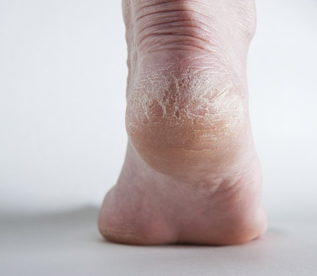 Cracked heel on human foot