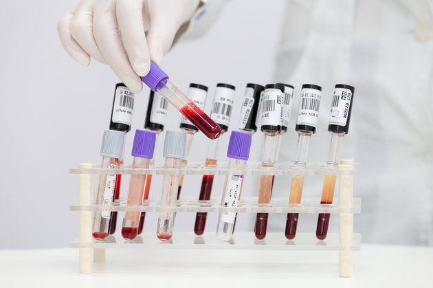 blood test tubes with blood was taken by doctor