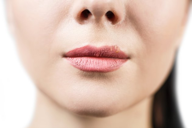 Beautiful lips infected herpes virus