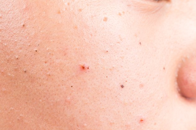 Closed up of acne, pimple and blackheads on face