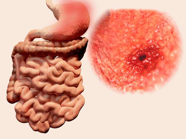 Stomach ulcer