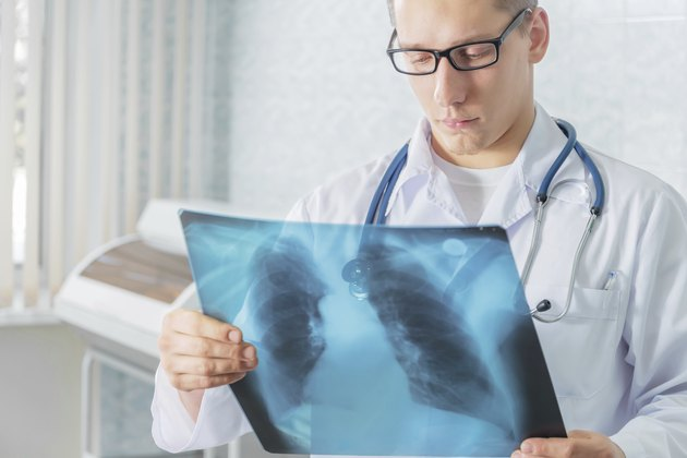 Doctor with x-ray picture