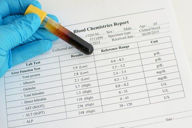 Abnormal liver function test result
