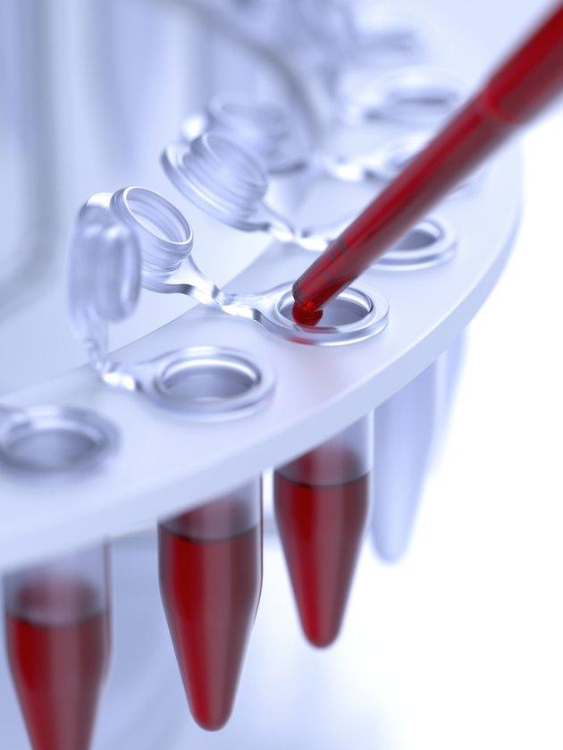 Laboratory blood test