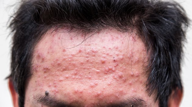 fore head of man having varicella blister or chickenpox