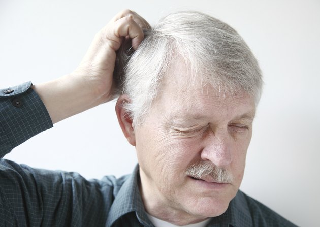 older man with dry scalp