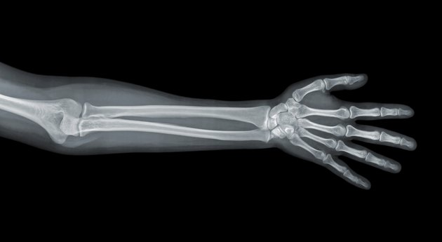 Hand x-ray view