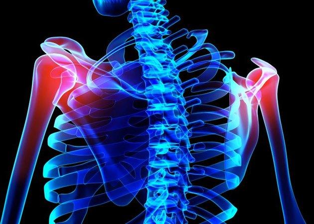 3D illustration, shoulder painful skeleton x-ray, medical concept.