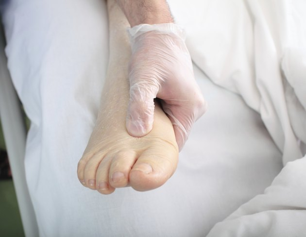 doctor examines foot of heavy patient with edema