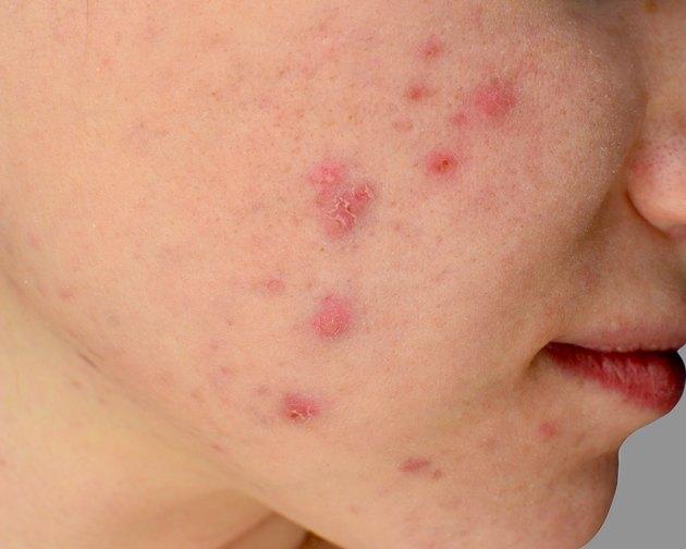 Human skin Acne