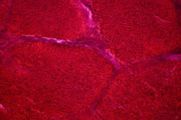 Liver cells under the light microscope. Leberzellen
