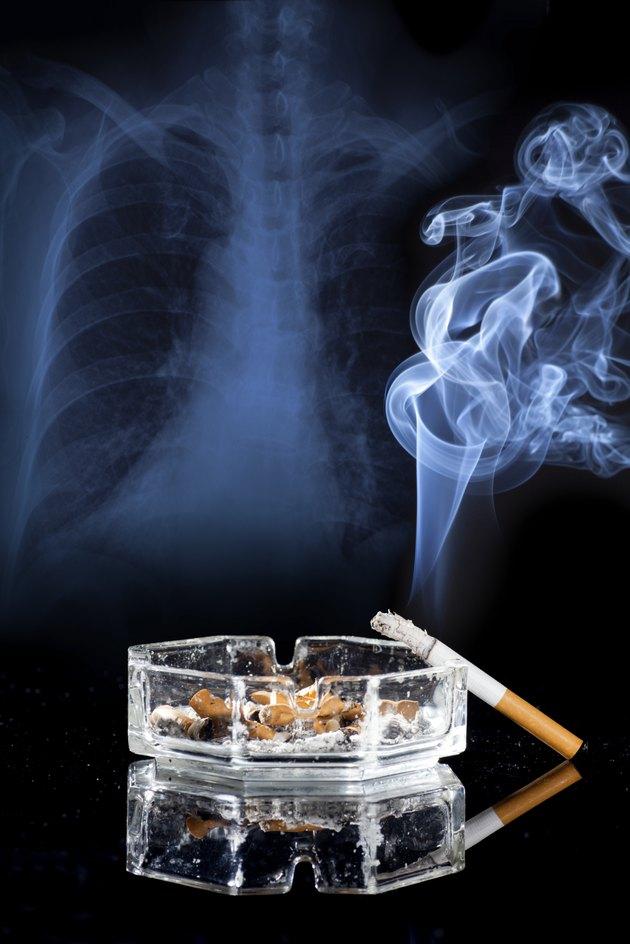 X-ray,Cigarette,Ashtray,
