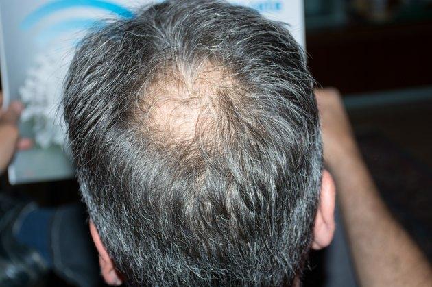 Mature man with balding.