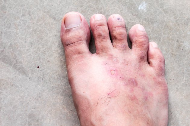 closeup skin athlete's foot psoriasis fungus