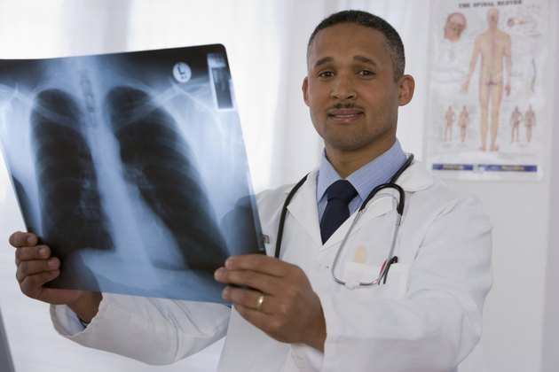 African doctor holding x-ray