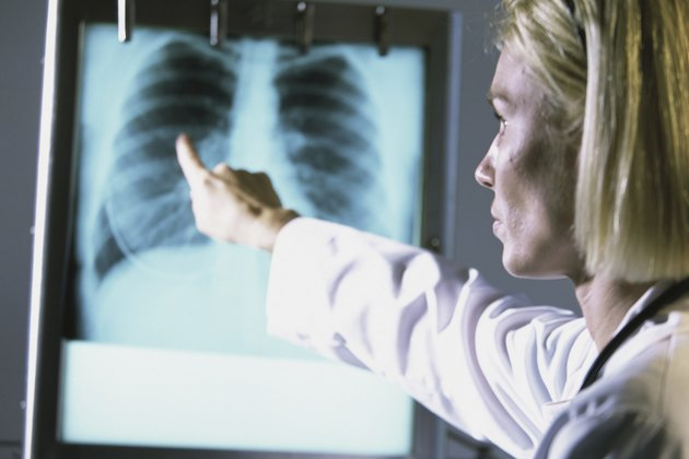Female doctor pointing at a chest X-ray