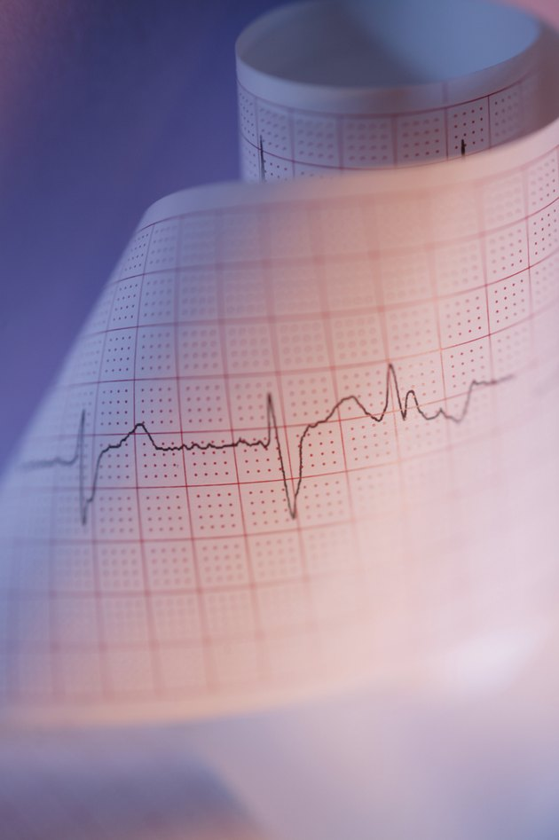 Close-up of EKG results