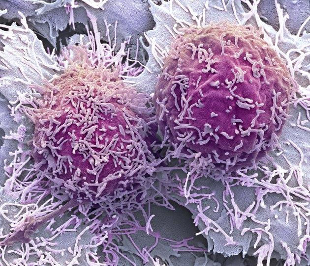 Liver cancer cells, SEM