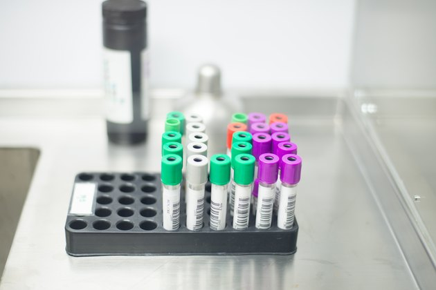 rack of color tubes with blood samples