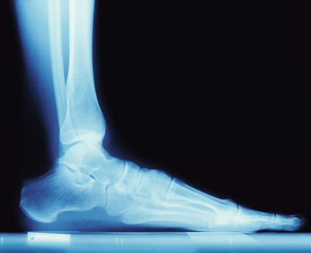 X Ray of a Human Foot