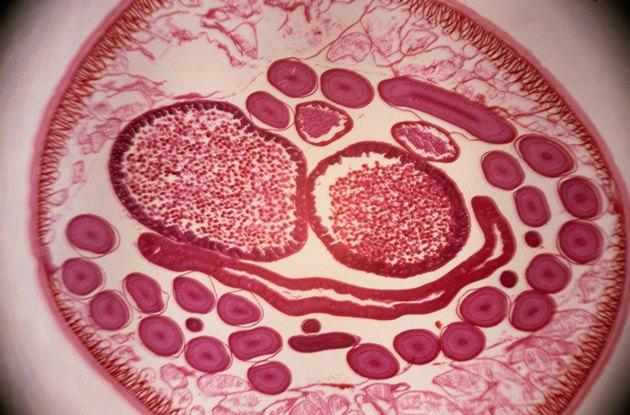 Microscopic Image of Roundworms