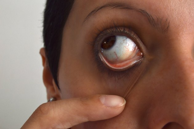 woman holding the eyelid