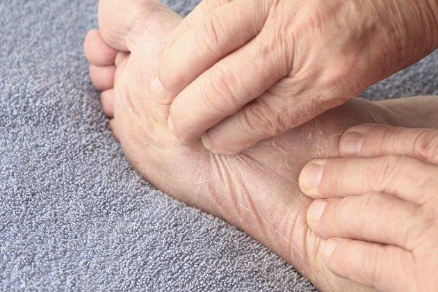 Man checking dry skin on foot